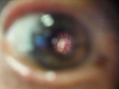 Beispiel-Bild des Augenhintergrundes mittels umgerüstetem Smartphone: Auf dem bewusst zum Augenhintergrund scharfgestellten Bildbereich (Mitte) ist der gelbliche Sehnervenkopf mit daraus austretenden Gefäßen und umgebender Netzhaut zu erkennen; © privat